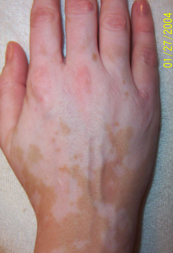 nathalie pelletier vitiligo right hand january 2004