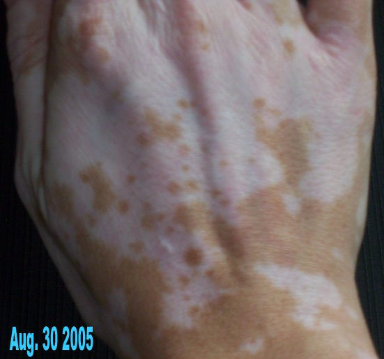 nathalie pelletier vitiligo right hand aug 2005