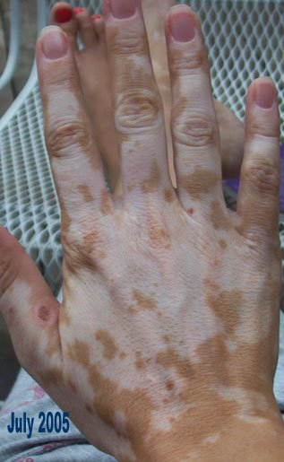 nathalie pelletier vitiligo right hand july 2005