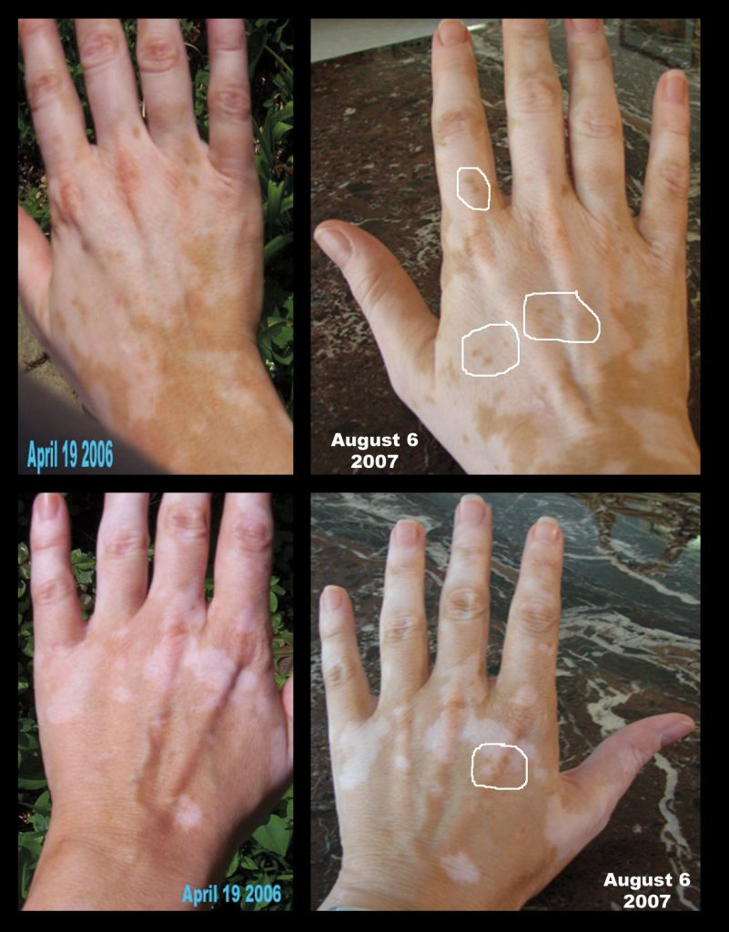 vitiligo-comparison-2007-a.jpg
