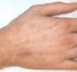 vitiligo cover lotion photo results after application