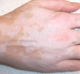 vitiligo cover lotion photo of results before application