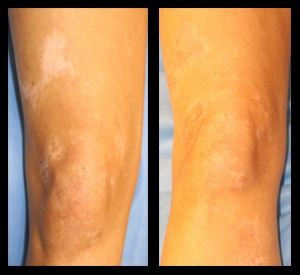 MKTP,melanocyte-keratinocyte transplantation,henry ford hospital,vitiligo,vitiligo photos