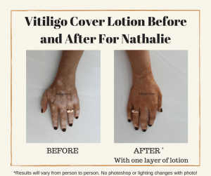 Vitiligo Cover Before and After