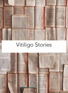 vitiligo stories