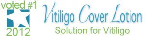 best-solution-for-vitiligo