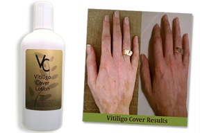 vitiligo-cover-lotion,vitiligo treatment,vitiligo concealer,nathalie pelletier