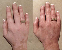 vitiligo cover works