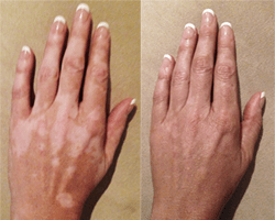 vitiligo-cover-up-lotion